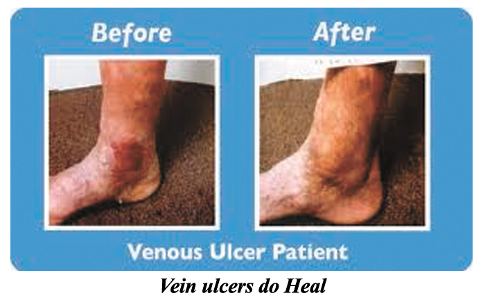 Vein Ulcers