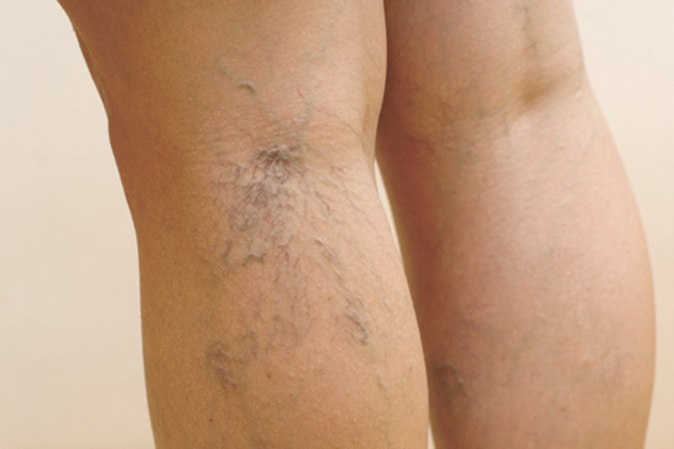 Understanding Chronic Venous Insufficiency
