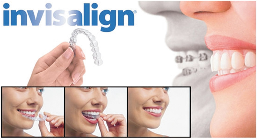 invisalign villages fl