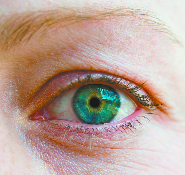 Dry Eyes and Menopause