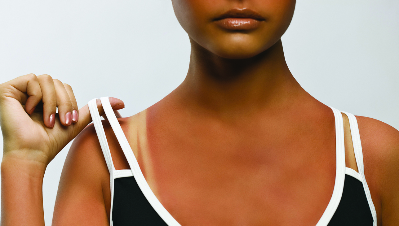 Sunburn- What is it and How to Avoid it