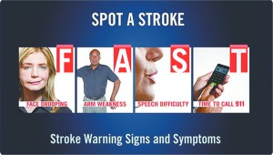 9 Out of 10 Strokes Could  Be Prevented, Study Finds