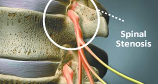 Think Surgery is the Only Way to Treat Spinal Stenosis? Think Again.