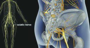 Don't Let Sciatic Nerve Pain Get in the Way of Your Life