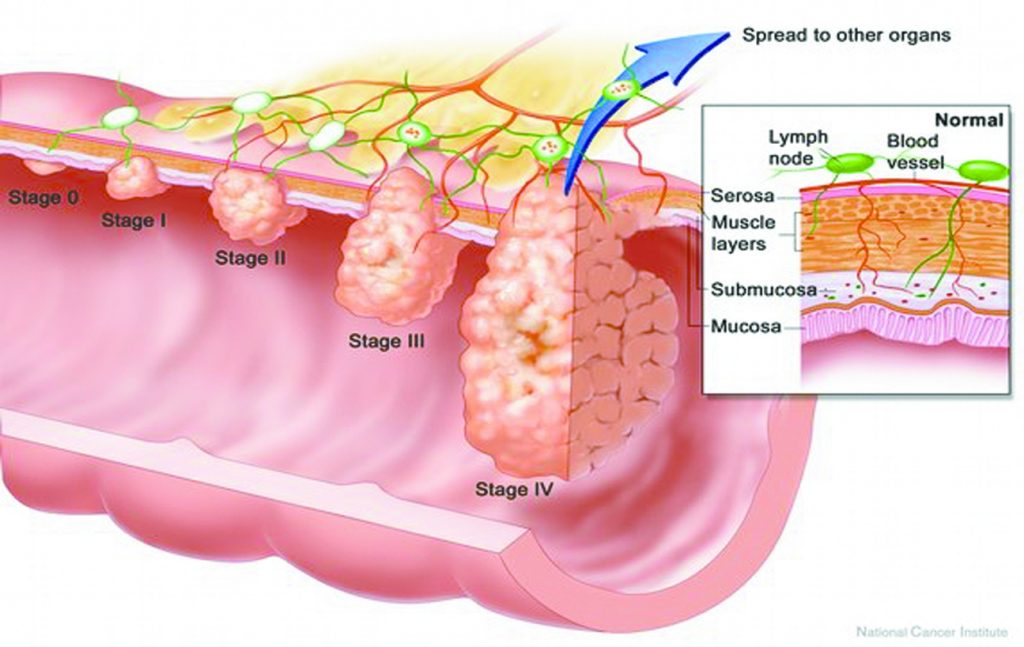 Early Detection of Colorectal Cancer Saves Lives