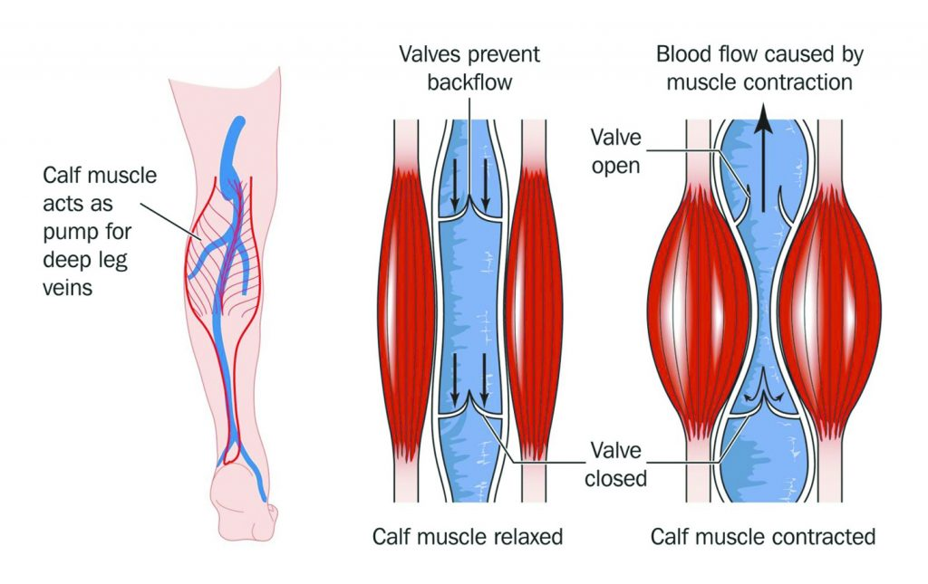 The Overlooked Dangers Of Venous Insufficiency Central Florida