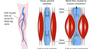 The Overlooked Dangers of Venous Insufficiency