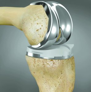 A Knee Replacement Implant Made Specifically For You