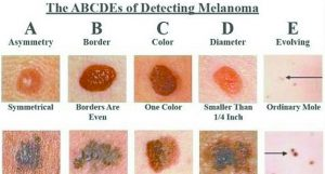 Skin Cancer Screenings