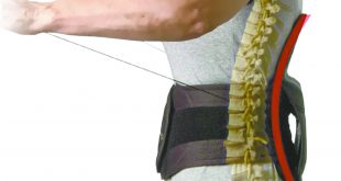 Eliminate Your Low Back Pain at Little to No Cost! Compton Chiropractic is now offering Insurance Approved Braces including Medicare!