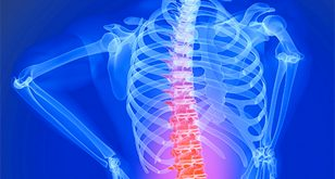 Managing & Treating Degenerative Disc Disease