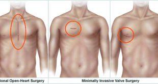 Treating Heart Valve Disease with Minimal Access Surgery
