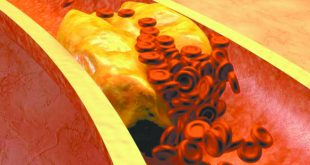 High Cholesterol = High Risk for Debilitating Diseases