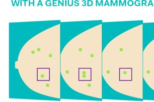 2D vs. 3D Mammography What's the Difference?