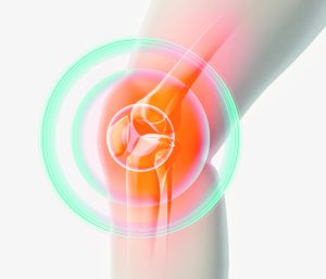 Florida Hospital Orthopaedic Institute's Research Team Leading Innovative Research Study for Treatment of Knee Osteoarthritis