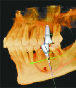 3D Imaging Minimizes Time and Cost of Dental Procedures