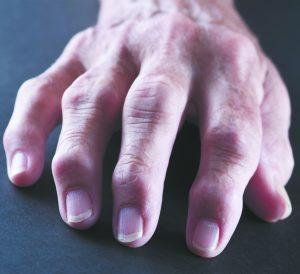Over 50 Million People Have Arthritis