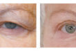 Drooping Eyelids Diminishing Vision and Appearance