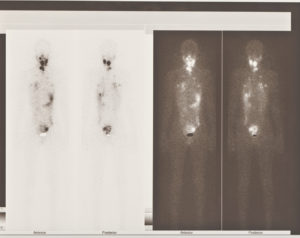 Nuclear Medicine Enabling Early Discovery