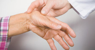 Treating Thumb Arthritis