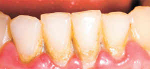Dental Plaque & Periodontal Disease  Can Affect Your Overall Health