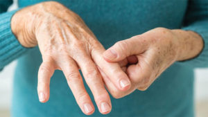 Do You Have Rheumatoid Arthritis
