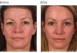 Nonsurgical Facelifting: Major Facial Rejuvenation without Surgery