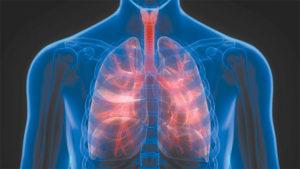 Chronic Obstructive Pulmonary Disease
