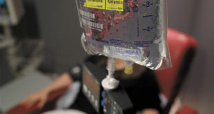 IV Ketamine Therapy for Depression
