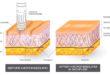 Microneedling Leaves Skin Feeling Healthy, Looking Rejuvenated