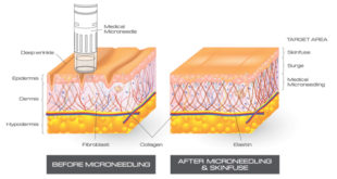 Microneedling Leaves Skin Feeling Healthy, Looking Rejuvenated