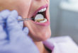 Substance Abuse & Long Term Oral Health
