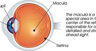 Age-related Macular Degeneration A Common Cause of Vision Loss