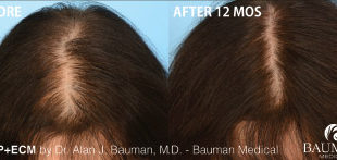 5 Things to Consider Before Seeing A Doctor for Your Hair Loss