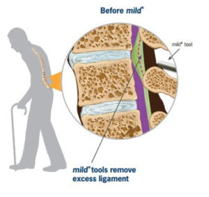 Spinal Stenosis Treatment Options