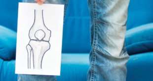 Arthritis: Do You REALLY Need Knee Replacement Surgery?