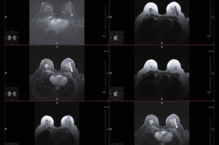 Breast MRI – A Supplementary Exam for Deeper Answers