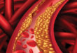 Is Your High Cholesterol Genetic?