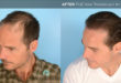 """How to Avoid Your Father's """"Follicular Fate"""""""