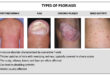 August is psoriasis awareness month