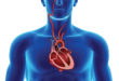 Atrial Fibrillation Awareness Month: What You Should Know