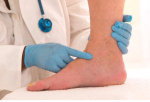 Spider Veins  Treatment and Causes