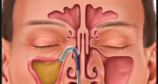 Chronic Sinus Infections? What Do ENT Specialists Recommend?