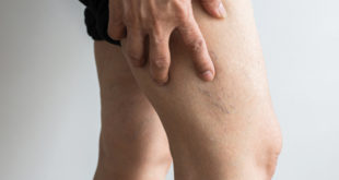 Is the Pain in Your Legs or Bulging Veins a Warning Indicator? What You Should Know