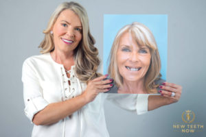 Complete  mouth restoration