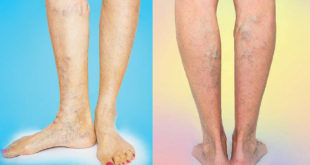 Varicose and Spider Veins Are Not Always Superficial