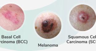 MELANOMA SKIN CANCER