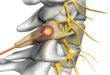 Radiofrequency Ablation For Pain Management