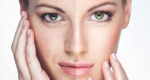 Common Acne Treatment Options