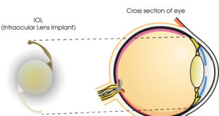 The IOL acts as a total replacement for your natural lens. Once implanted, with the aid of advanced technology, the IOL is customized to your eye to reduce or eliminate your need for glasses. The lOL will function and feel just like a healthy, cataract-free lens. After a short healing period, the IOL requires no special maintenance.
